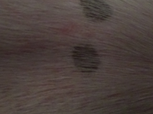 welt after skin scraping