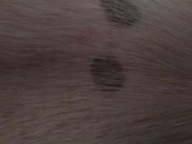 welt after skin scraping